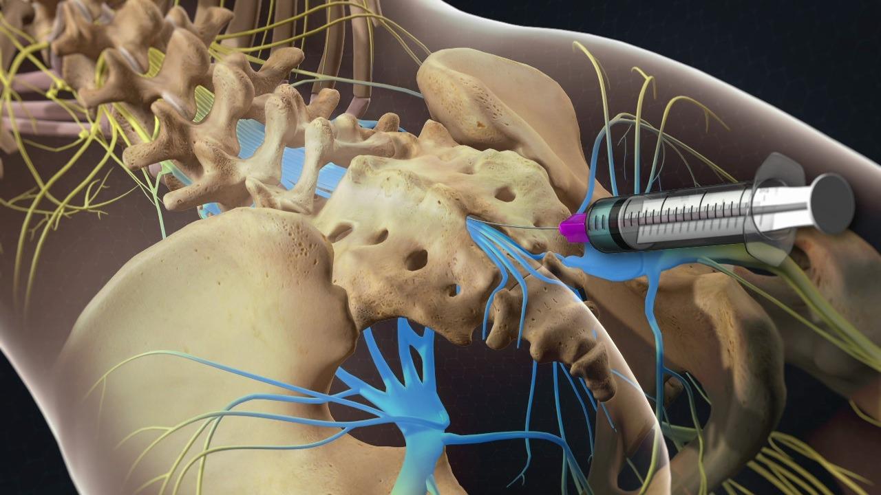 columna ortopédica si inyecciones articulares para el dolor