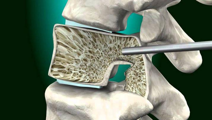 kyphoplasty vertebroplasty