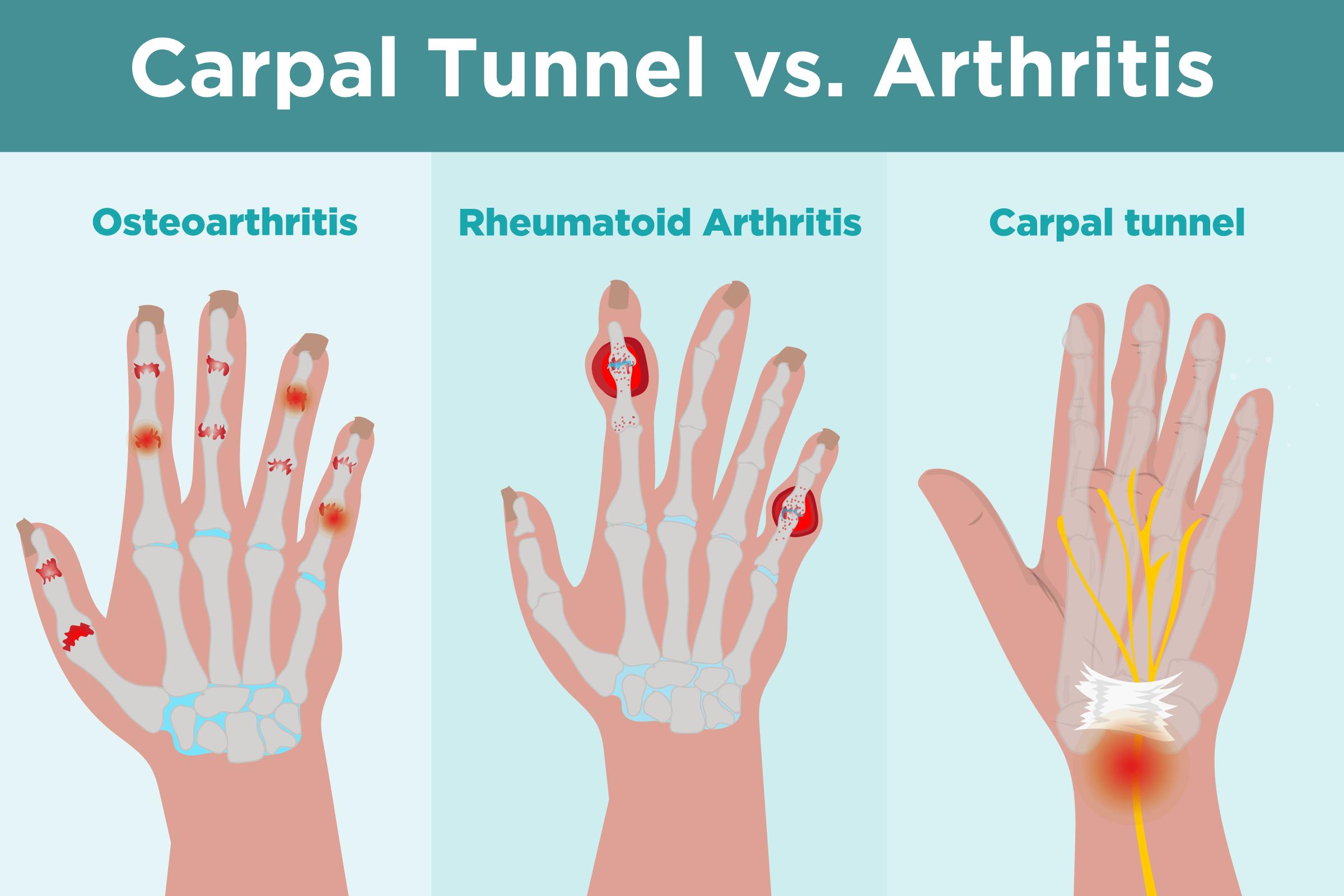 osteoartritis vs artritis reumatoide