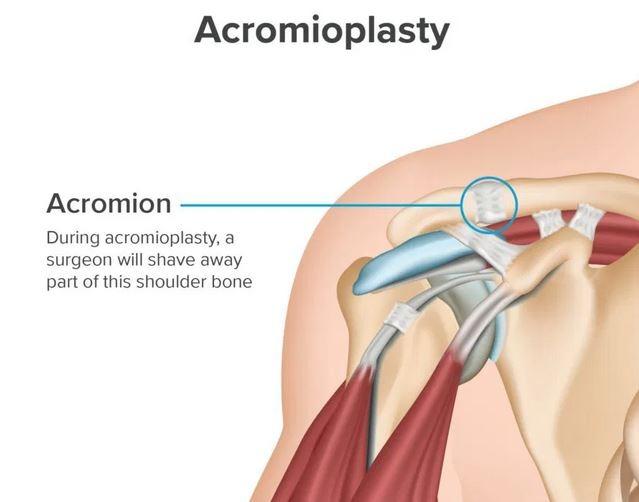 acromioplasty of the shoulder