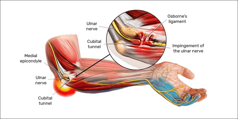 ulnar nerve inpingement cubital tunnel