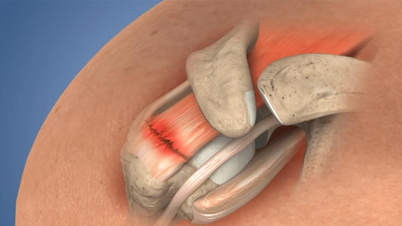 Cirugía de reparación del manguito rotador