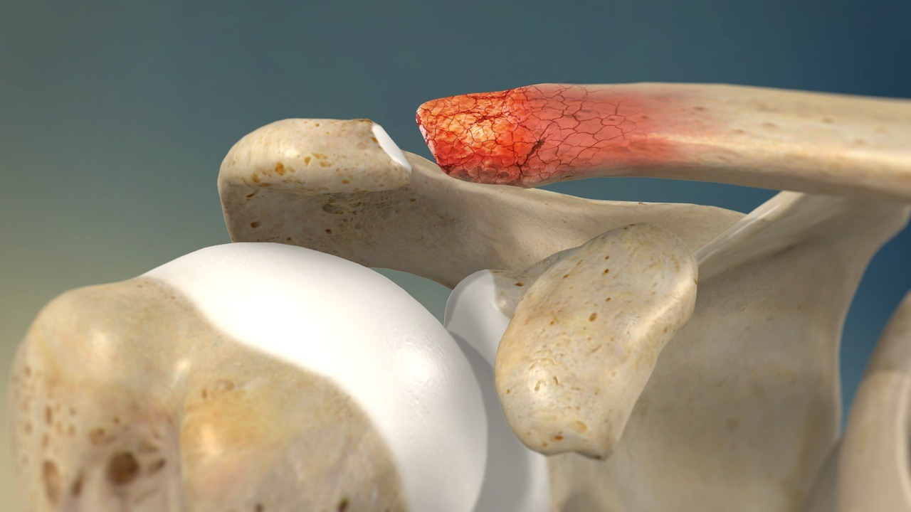 shoulder arthritis pain cause