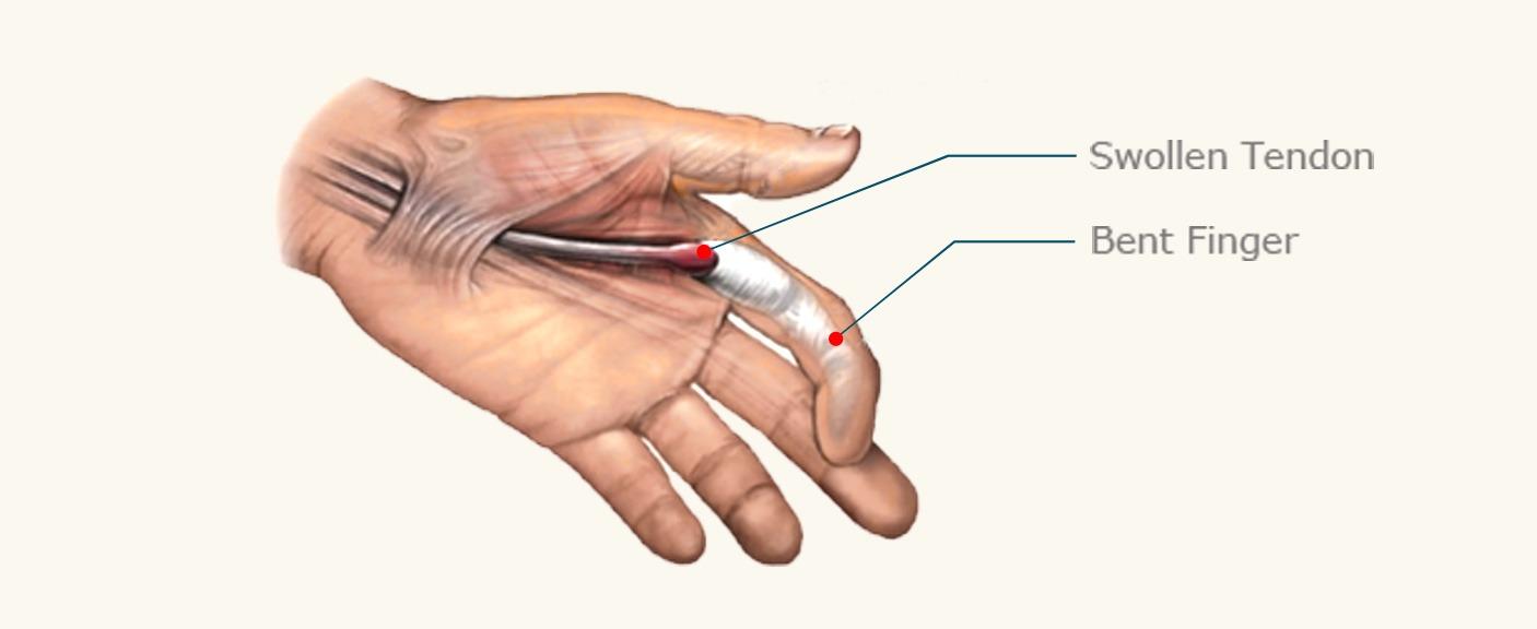 trigger finger specialist