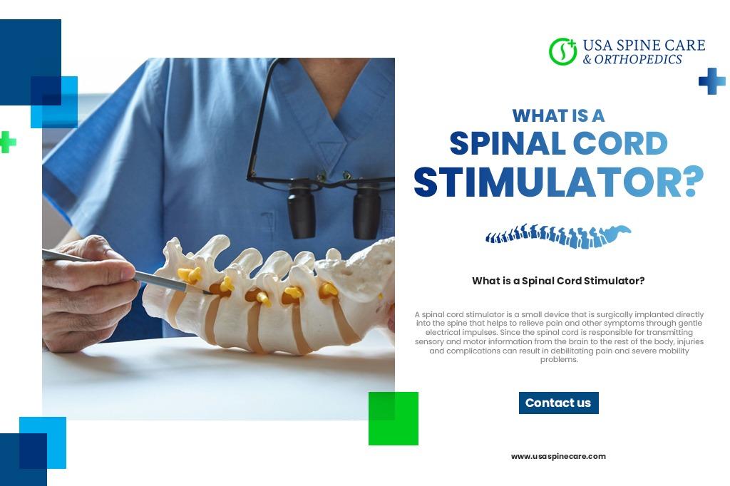 estimulador de médula espinal