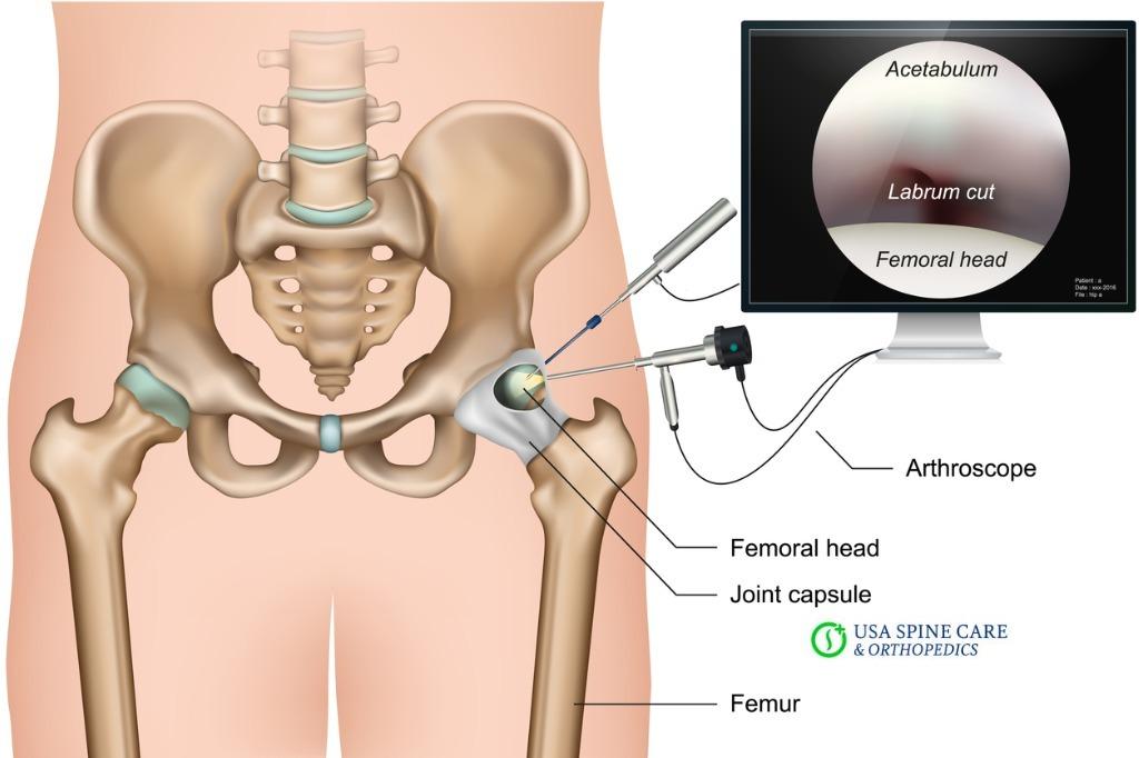best hip surgeon in U.S.