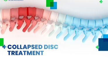 opciones de tratamiento del disco espinal colapsado