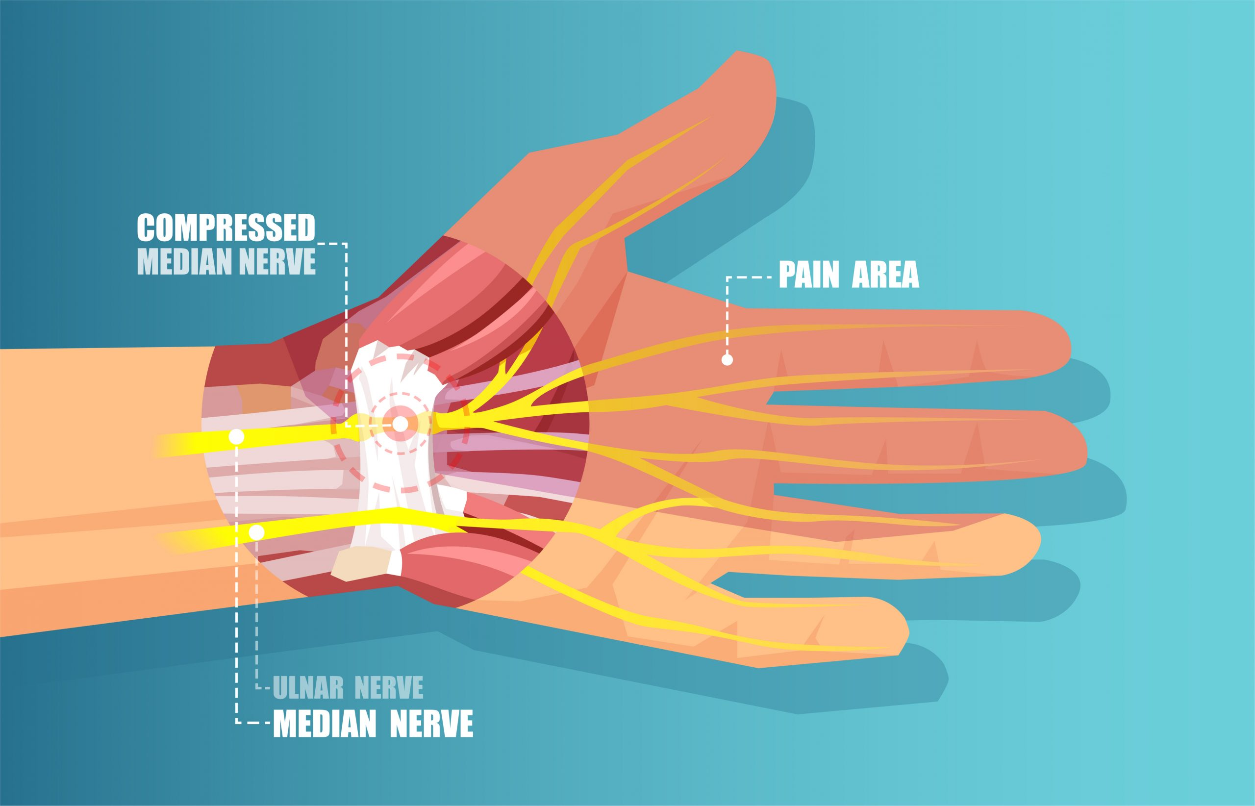 wrist specialist orthopedic doctor